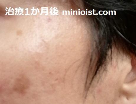 治療1か月後の左頬